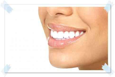 Стоматология Кисловодск Отбеливание зубов Кисловодск