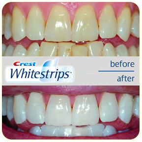 Crest White Strips Pro Effects Review