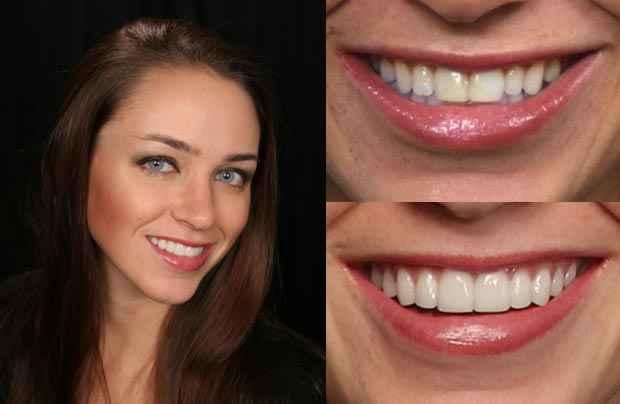 Серия зубных паст Crest Whitening Expressions Отбеливающая экспрессия