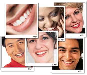 Набор для отбеливания зубов Crest Beauty