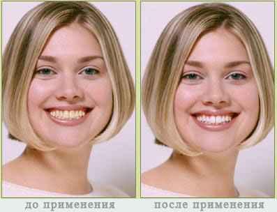 система отбеливания зубов