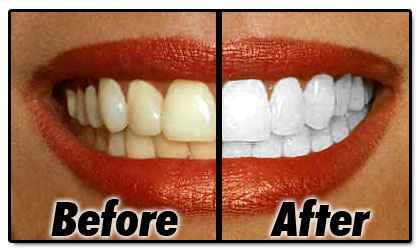 Plus White 5 Minute Whitening (Плюс Вайт)