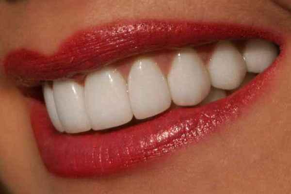 отбеливание зубов дома Плюс вайт