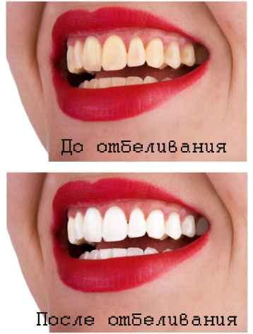 На задних зубах черные полоски