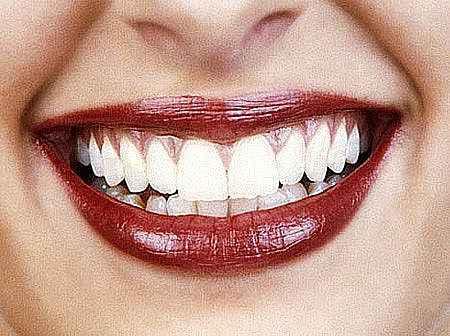 гель для зубов отбеливание зубов