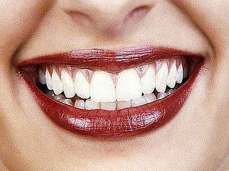 отбеливание зубов 3д вайт