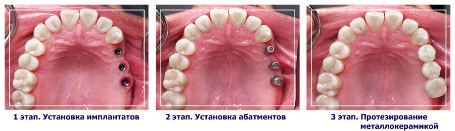 prot-zub1