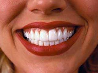 Зубная паста от кариеса BREATHRX (БРЕТАРЕКС)