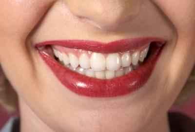 отбеливание зубов барнаул