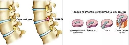 Межпозвоночная грыжа: патогенез, симптомы, диагностика