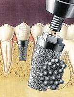 Как формируются цены на имплантацию зубов?
