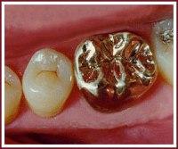 Виды зубных коронок и их роль
