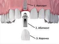Протезирование зубов в наши дни
