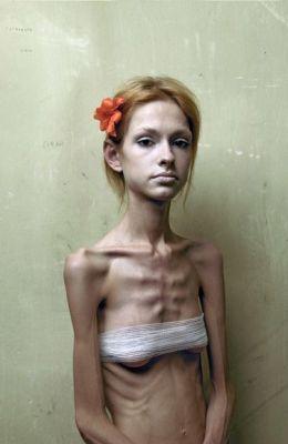 Подростковая анорексия