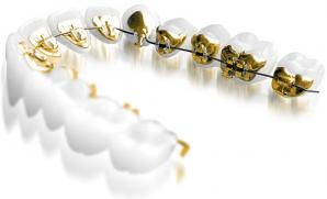 Путешествие в мир ортодонтии - онлайн!