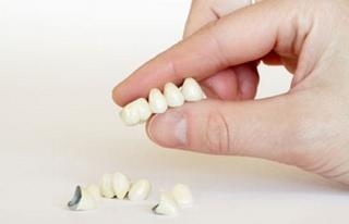 Зубное протезирование – скорая помощь для ваших зубов