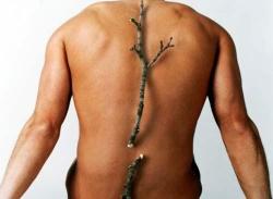 Боли в спине - ищем причину