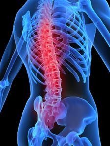 Поясничный остеохондроз, его симптомы и лечение при помощи упражнений