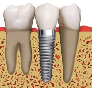 Достижения и технологии современной стоматологии