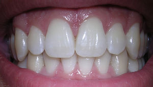 Зубы-имплантаты и их положительные стороны