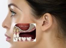 Зубные имплантаты: все, что необходимо знать