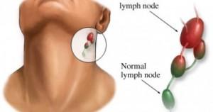 Увеличились лимфоузлы на шее