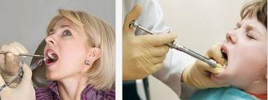 местная анастезия в стоматологии