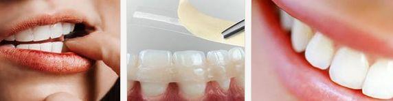 подвижность зубов - причины и как с этим бороться