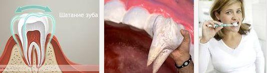 излишняя подвижность зубов