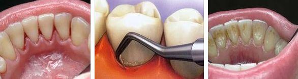 зубной камень, техника удаления