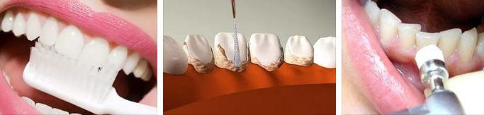 чистка зубов - способы
