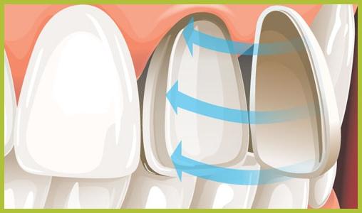 Виниры для зубов - как выглядят